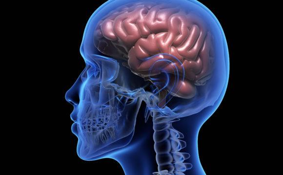 Neurologie médicale