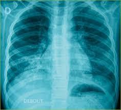 Pneumologie pédiatrique et allergologie